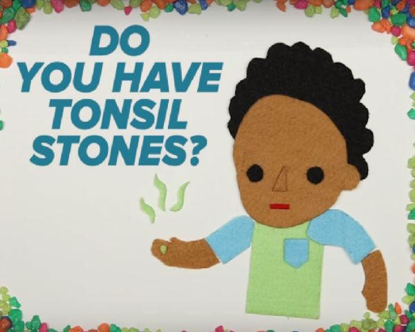 Tonsil Stone Photos